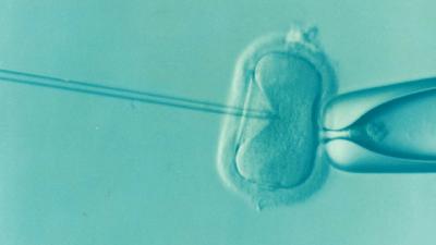 Des ovaires artificiels pour permettre aux femmes infertiles d'avoir un enfant